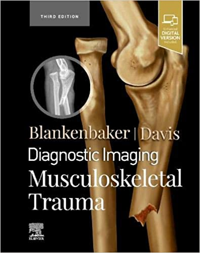 Diagnostic Imaging: Musculoskeletal Trauma 2021 - اورتوپدی