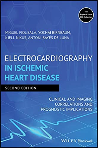 Electrocardiography in Ischemic Heart Disease: Clinical and Imaging Correlations and Prognostic Implications 2020 - قلب و عروق