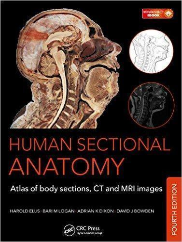 Human Sectional Anatomy: Atlas of Body Sections, CT and MRI Images  2015 - رادیولوژی