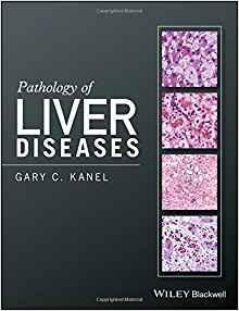Pathology of Liver Diseases  2017 - پاتولوژی