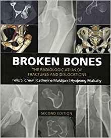 Broken Bones: The Radiologic Atlas of Fractures..2016 - اورتوپدی